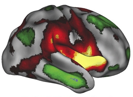 Human brain4